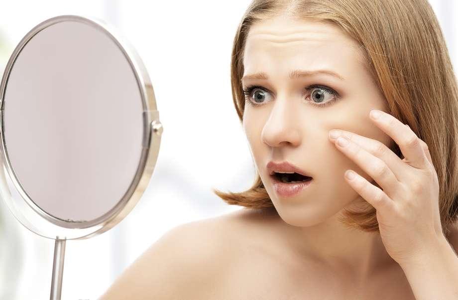 Arrugas - Botox